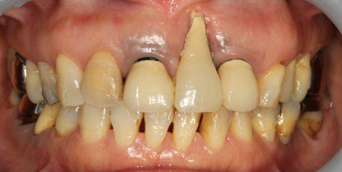 歯茎が痩せて長くなってしまった歯を綺麗に改善 | 京都市左京 ...